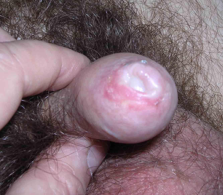 opuh-penis